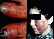 exophiala infection from contaminated injectable steroids